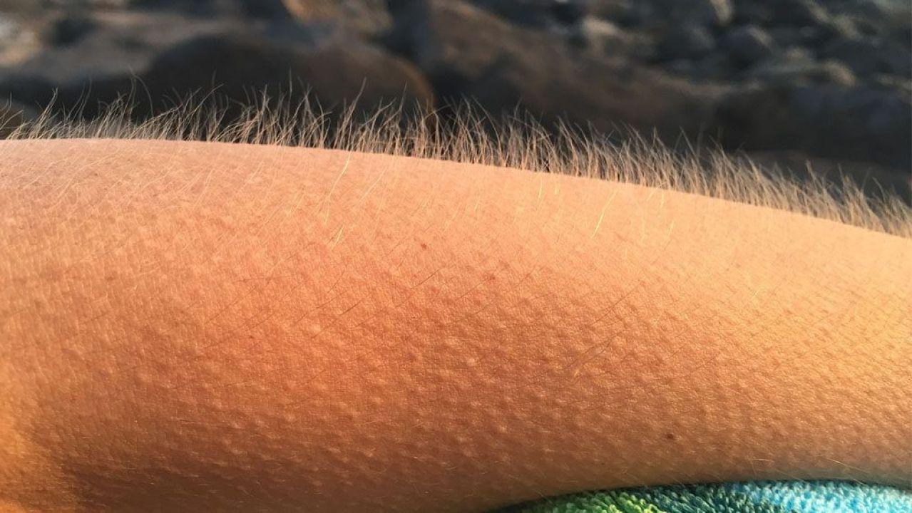 Piel De Gallina Al Escuchar Tu Canción Favorita